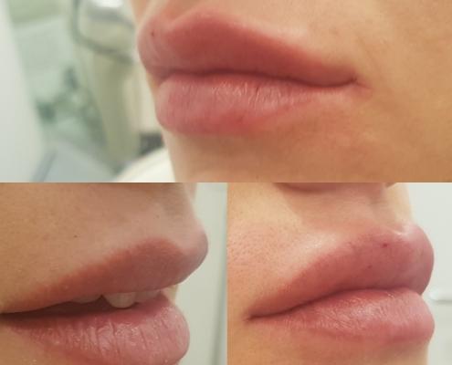 Lippenaufspritzen vorher nachher mit Hyaluronsäure in Wien
