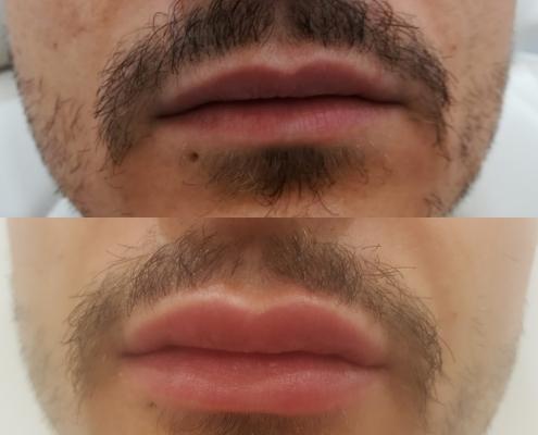 Lippen aufspritzen vorher nachher beim Mann