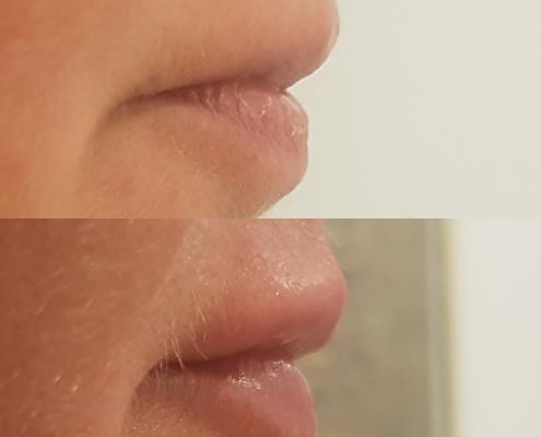 Lippen aufspritzen vorher nachher