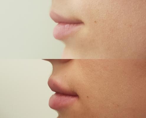 Lippenfiller vorher nachher seitliche Ansicht