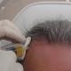 PRP Behandlung der Kopfhaut bei schütterem Haar Wien