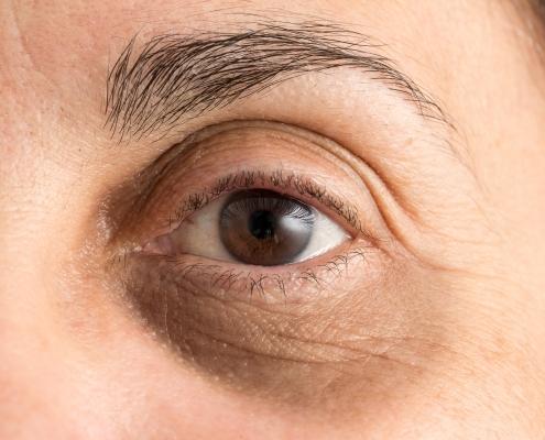 Eigenblutbehandlung Augenringe