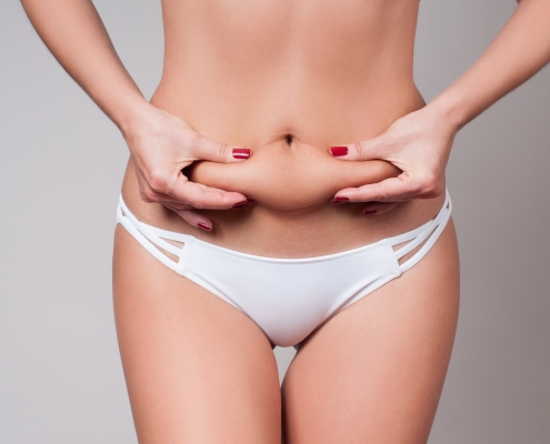 Liposuction Wien