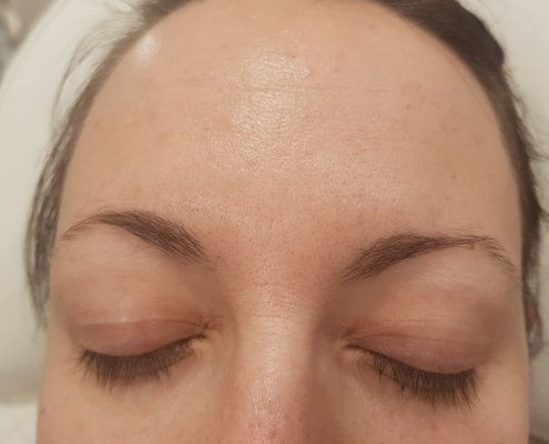 Kozlowski - Botox