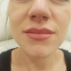Kozlowski - Lippenbehandlung