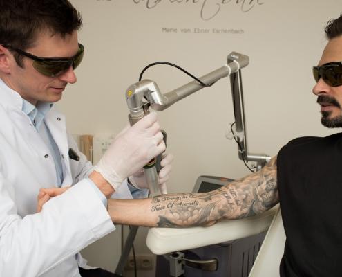Kozlowski - Tattooentfernung