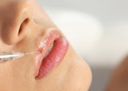 Lippen Hyaluronsäure Behandlung Wien Lippenaufspritzen